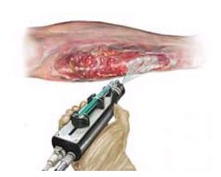 Skin gun shoots Stem Cells to heal wounds
