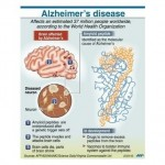 Cellphones may protect the brain from Alzheimer's